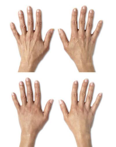 Πλαστικοί Χειρουργοί Αθήνα Λίφτινγκ Χεριών με Λίπος Λίφτινγκ Χεριών με Λίπος hands lifting fat 1