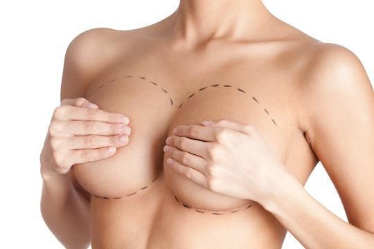 Πλαστικοί Χειρουργοί Αθήνα Ανώδυνη Αυξητική Στήθους Ανώδυνη Αυξητική Στήθους img1357 0cfcfc6b4c4ff54184b7f4efb8df31f7 540 1