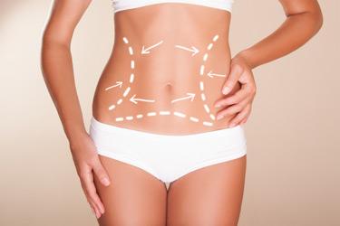Ανώδυνη Κοιλιοπλαστική Ανώδυνη Κοιλιοπλαστική koilioplastiki 1