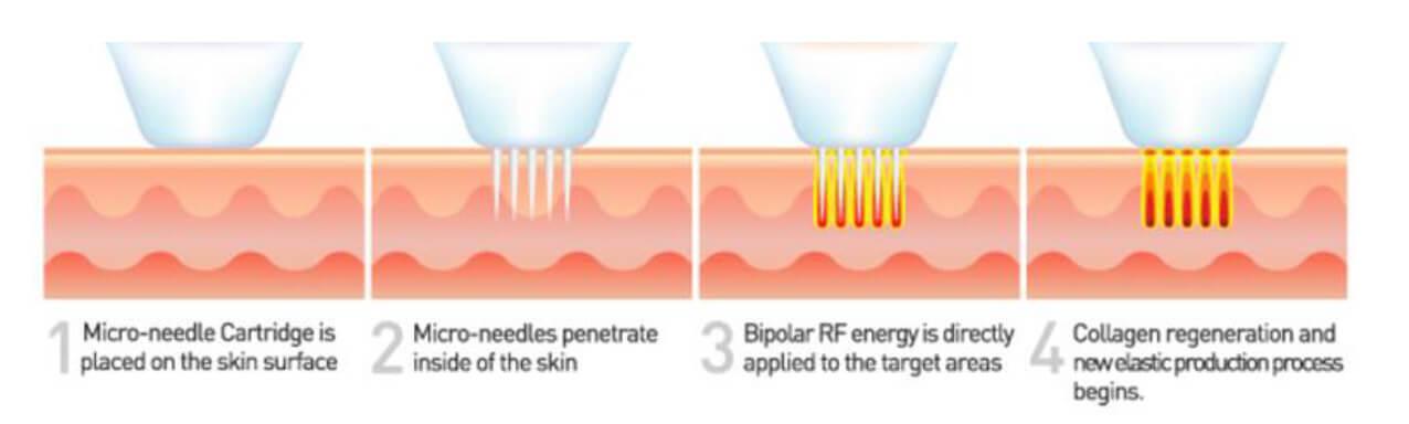 Πλαστικοί Χειρουργοί Αθήνα Ανάπλαση Προσώπου-Αντιγήρανση Ανάπλαση Προσώπου-Αντιγήρανση needle rf technology 1