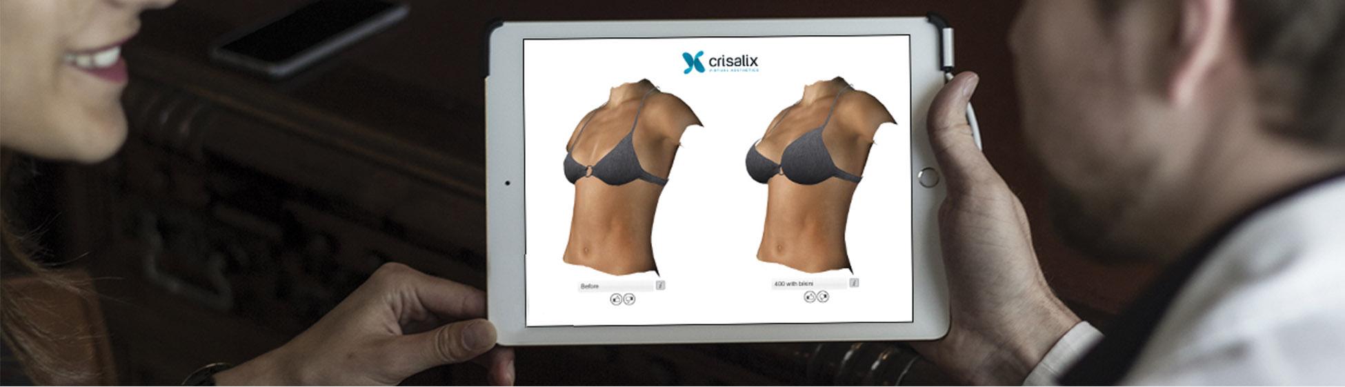 3D Consultation page - Dr. Dimitrios Laoulakos